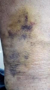 Middelgrote spataderen 4 weken na behandeling