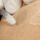 Behandeling kleine spatader