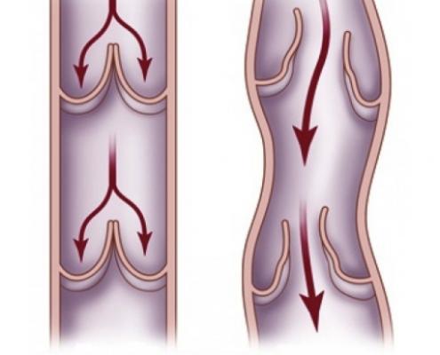 spataderen