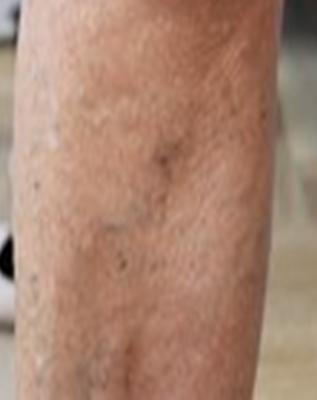 Pigmentatie na sclerotherapie